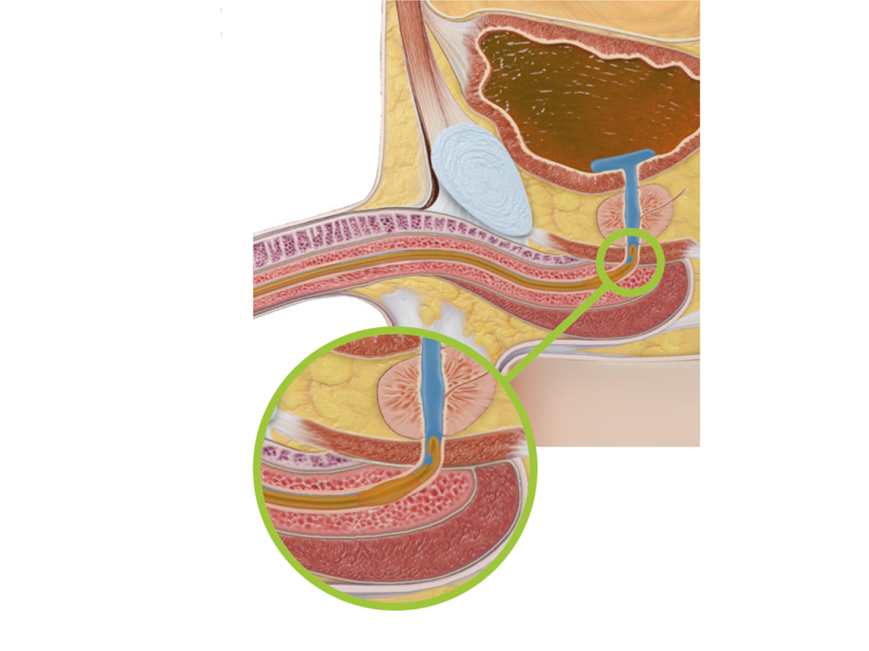 bactiguard-catheterization-indwelling-catheter-24