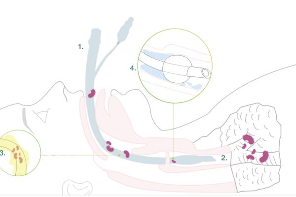 Bactiguard_main-causes-of-vap